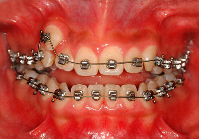 画像: 側湾症で悩む八重歯、開口の女子中高生の歯列矯正