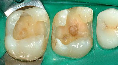 スライスカット・奥歯の虫歯治療方法 GVBDO