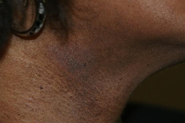 eczema peau foncee