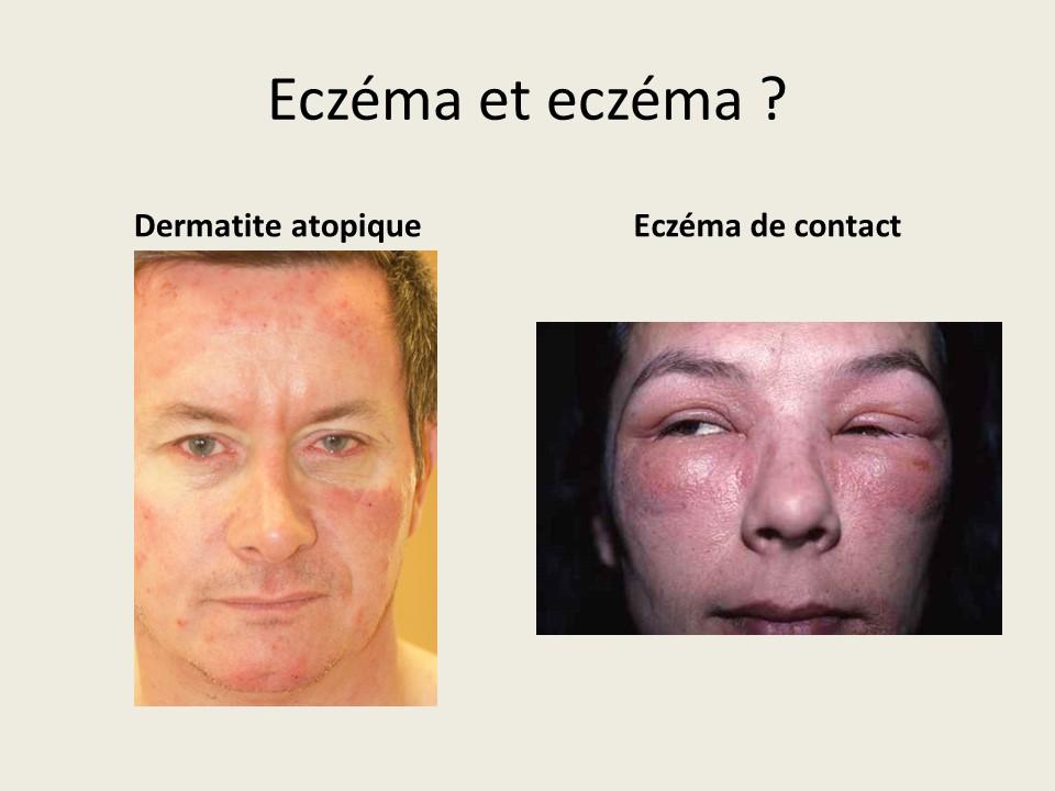 l eczema a l officine