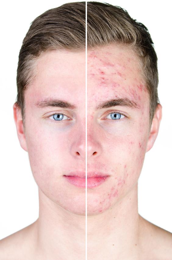Akne – das Schreckgespenst der Jugend