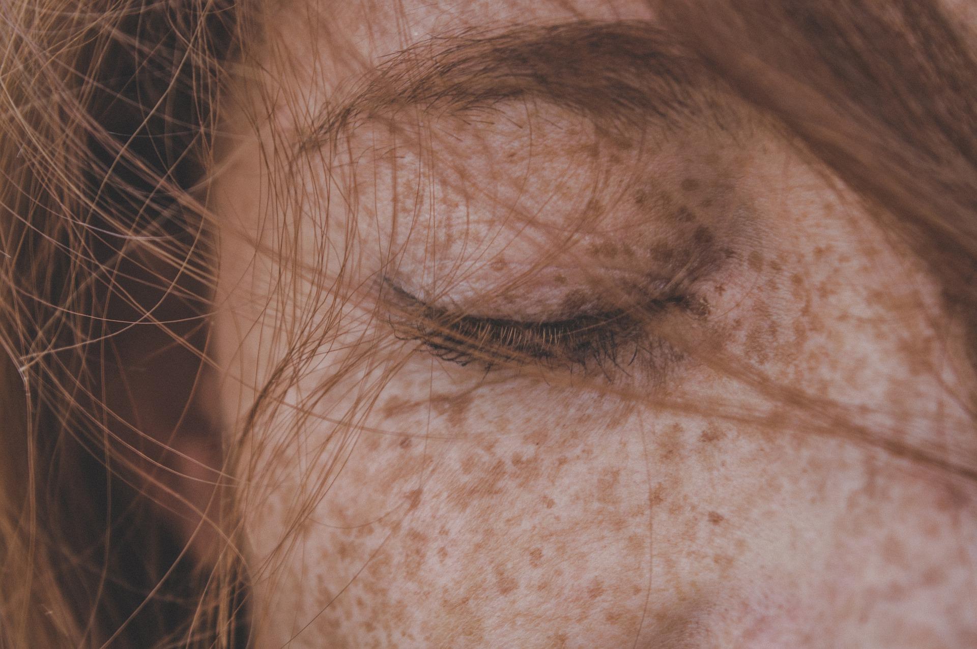 Unsere Haut vergisst nichts: Schönheitsfalle Sonnenbräune