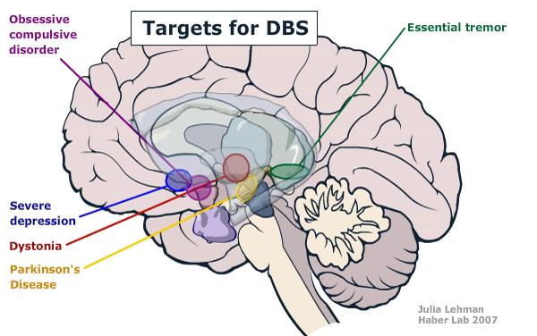 Die Zielgebiete für OCD und Deoressionen liegen gemäß einigen Studien nahe beieinander - eine mögliche Erklärung für die Verbesserungen in mehreren Symptomen