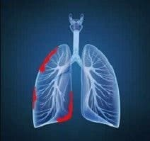 mesotelioma-peritoneale-sintomi-cause