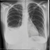 Röntgenthorax