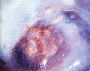 """Photo de """"l'homme congelé"""" par Bernard Heuvelmans"""