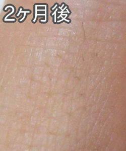 ケノンで指の産毛脱毛(2ヶ月後)