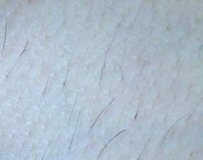 照射漏れ、また生えてきた毛、残り毛