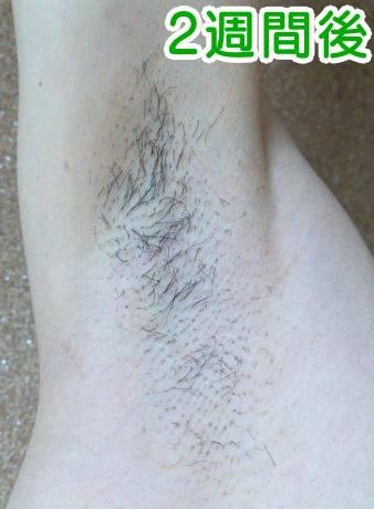 ケノンで剛毛を脱毛した時の効果2