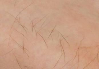 効果ある普通の毛