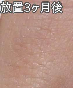 ケノンで指の産毛脱毛(3ヶ月放置後)