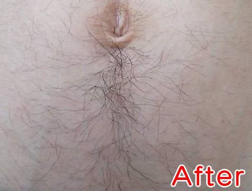 ケノンで濃い腹毛を薄くする減毛ビフォーアフター