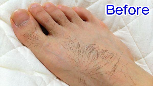 家庭用脱毛器で足の甲を脱毛した脱毛前の写真