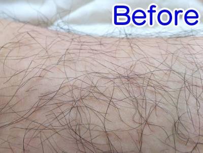 ケノンの効果画像ビフォーアフター(毛を薄く)