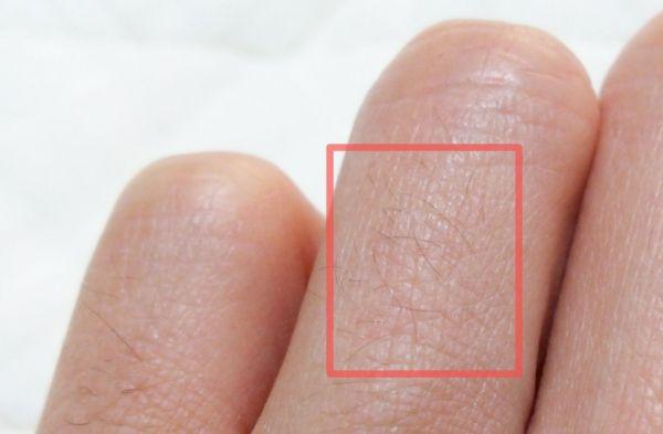 脱毛前の指毛