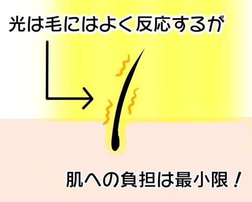 光脱毛による肌への負担