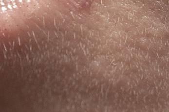 効果ない産毛