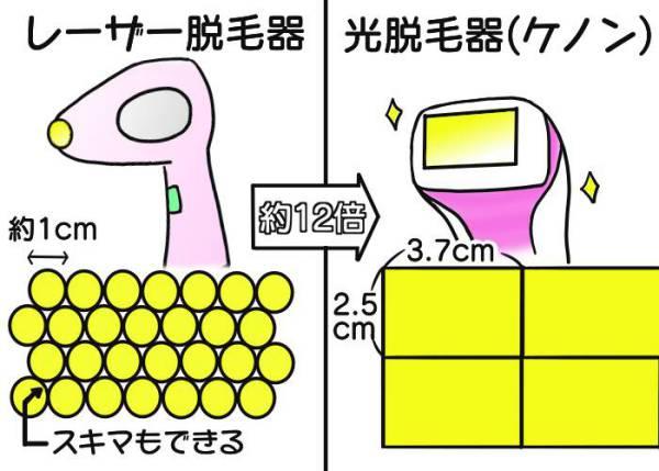 光脱毛器とレーザー脱毛器の照射面積比較