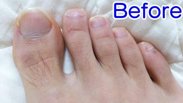 足の指を脱毛した時の効果(ビフォー)