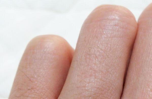 指の産毛脱毛する前の画像