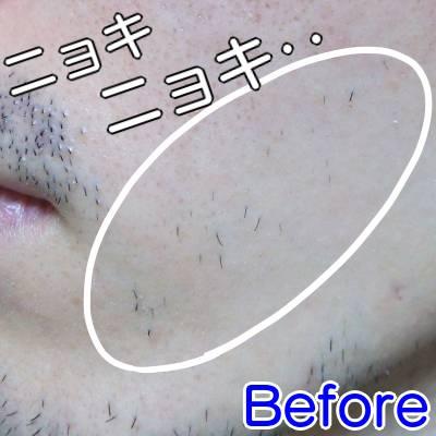 ケノンで顔毛脱毛した時の効果(ビフォー)
