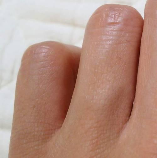 ケノンで指脱毛して7か月放置した時の写真