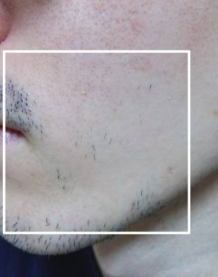 ケノンで顔毛を脱毛した時の効果