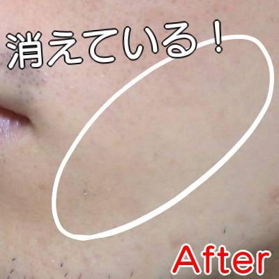 ケノンエステ級の脱毛効果After