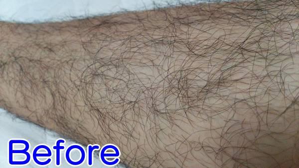 ケノンで濃いすね毛を薄くする前