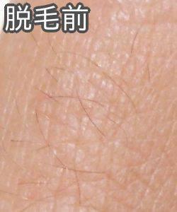 ケノンで指の産毛脱毛(脱毛前)