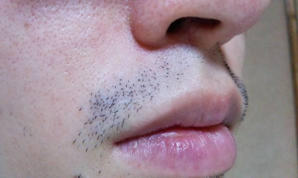濃い髭の例