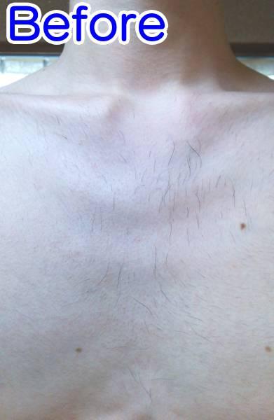 ケノンで胸毛脱毛した時の効果(ビフォー)