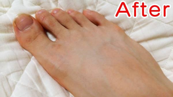 ケノンで足の甲の毛を脱毛した時の効果(アフター)