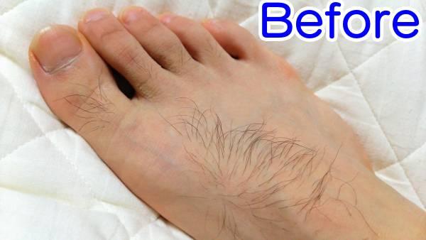 ケノンで足の甲を脱毛した時の効果(ビフォー)