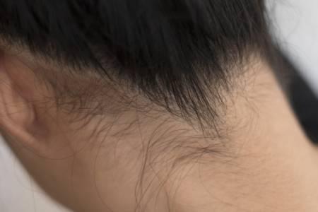 うなじの毛