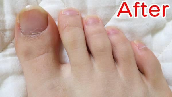 足の指を脱毛した時の効果(アフター)