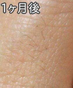 ケノンで指の産毛脱毛(1ヶ月後)