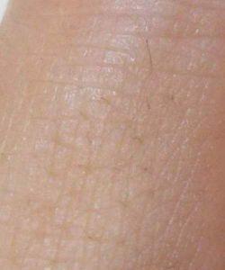 指の産毛脱毛、2か月後