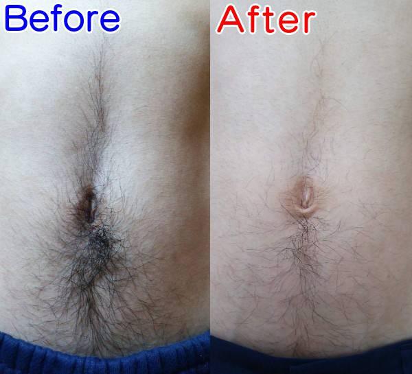 濃い腹毛を薄くする減毛ビフォーアフター