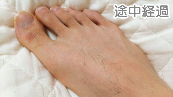 家庭用脱毛器で足の甲を脱毛した途中経過の写真