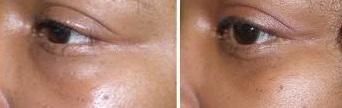 Hyaluronkissen unterm Auge -    rechts: nach Hylase-Injektion