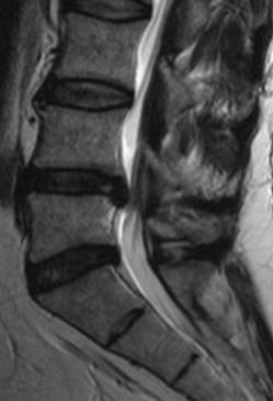 Lumbaler Bandscheibenvorfall LWS L4/5 L4 5 L4-5 Spinalkanalstenose lumbal LWS Wirbelsäulenchirurgie Köln Widdersdorf Siegburg