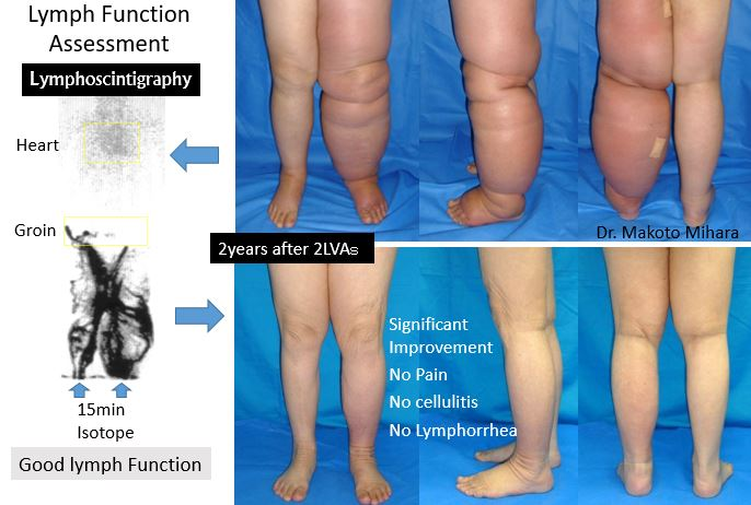 Lymphedema Cellulitis, Lymphedema Treatment Japan by Dr. Makoto Mihara