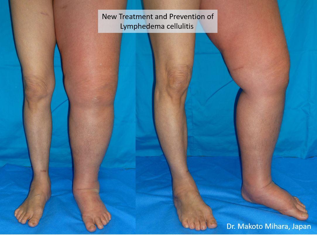 Lower Limb Lymphedema, cellulitis, treatment, Lymphedema Treatment Japan