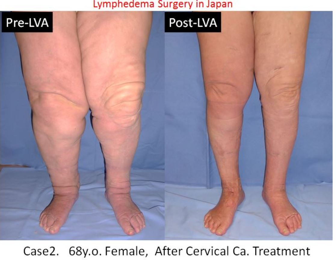Bilateral Lower limb lymphedema, Lymphedema Treatment Japan