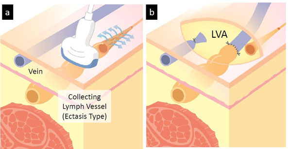 Lymphatic Ultrasound, Lymphedema Diagnosis and Treatment Japan