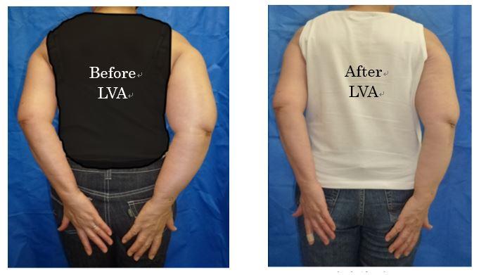 LVA Surgery by Dr. Makoto Mihara, Lymphedema Treatment Japan