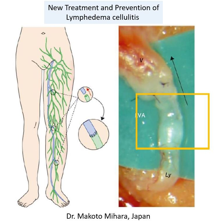 LVA (Lymphatic Venous Anastomosis), Lymphedema Treatment Japan by Dr. Makoto Mihara