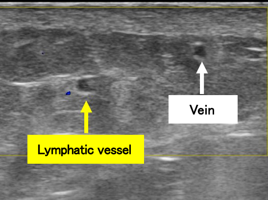 Lymphatic Ultrasound for LVA surgery, Lymphedema Treatment Japan