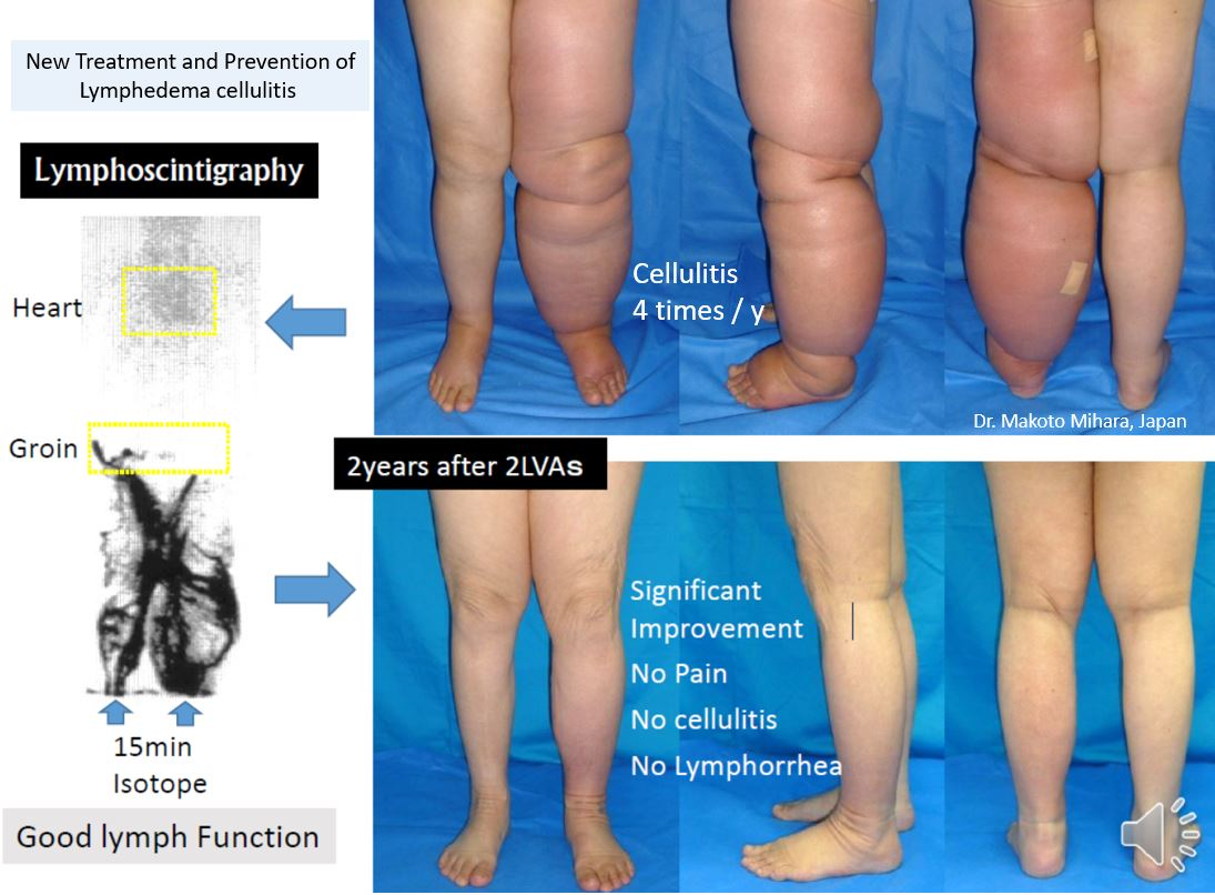 Treatment and prevention of lymphedema cellulitis, Lymphedema Treatment Japan